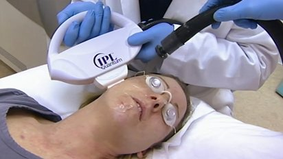 10-years-younger-ipl-treatment-intense-pulsed-light_412x232