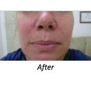 Clearlift after - facial rejuvenation