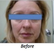 Clearlift before - facial rejuvenation