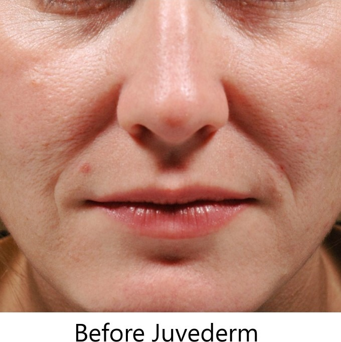 Juvederm dermal filler Omaha, NE before