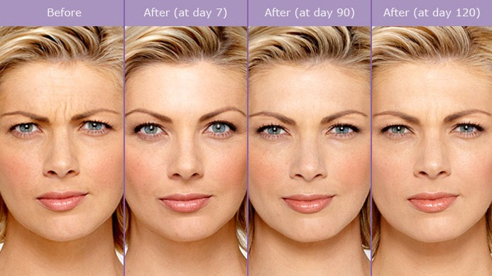 before and after botox treatment Omaha, NE