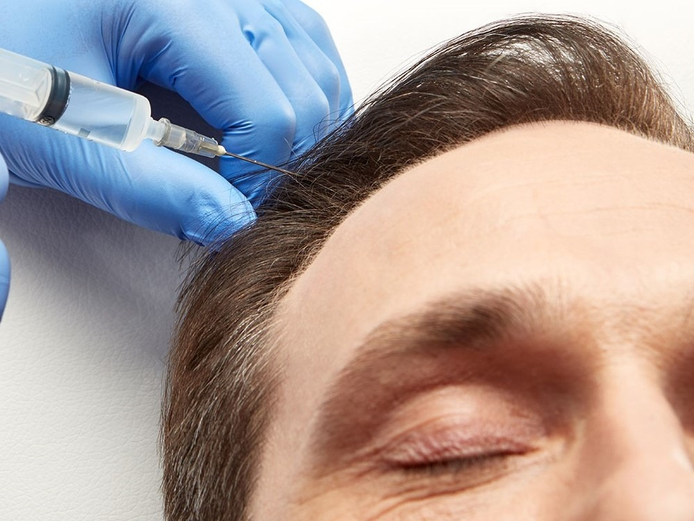 PRP hair growth and rejuvenation in Omaha, NE