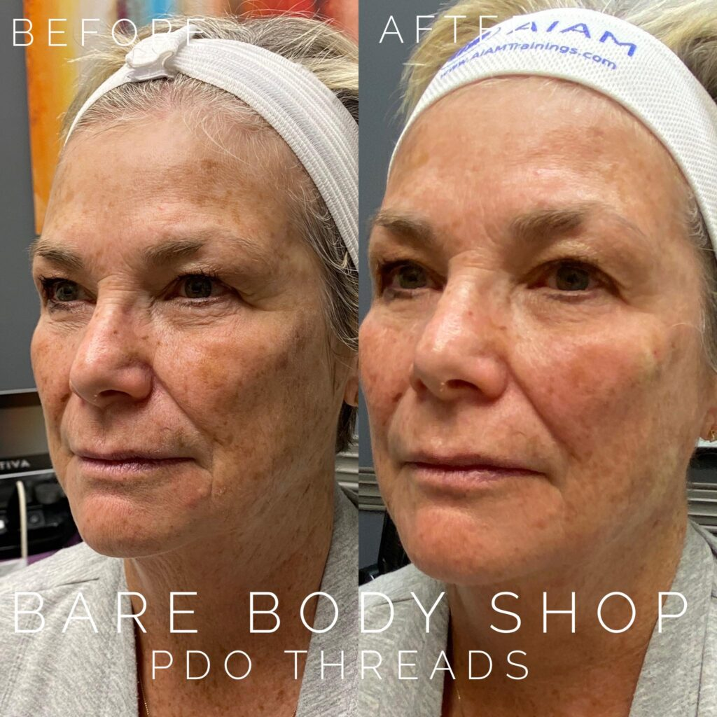 PDO Threads before after - Bare Body Shop Omaha, NE
